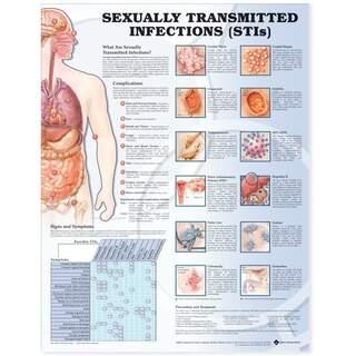 Sexuellt överförbara sjukdomar laminerad affisch 51x66 cm