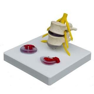 Modell av diskbråck med nerver och tre utbytbara diskar