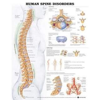 Sjukdom i ryggraden laminerad affisch engelsk (Human spine disorders)