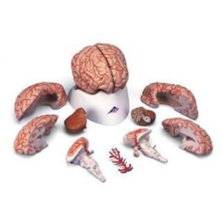 9-delad hjärna med artärer