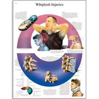 Whiplashskada 50x67 cm