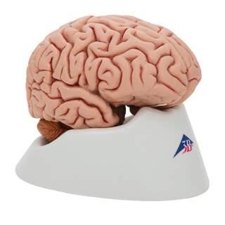 Klassisk hjärnan äkta avgjutning