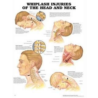 Pisksnärtsskada laminerad affisch engelsk (Whiplash injuries)