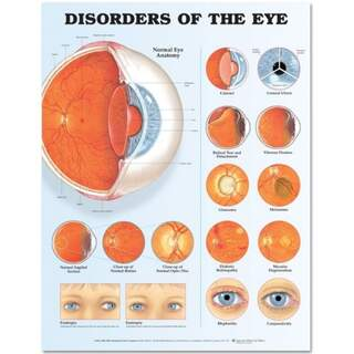 Ögonsjukdomar laminerad affisch (Disorders of the Eye)