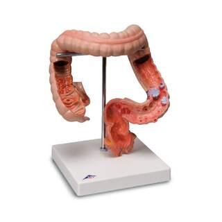 Detaljerad modell av tjocktarm som visar flera sjukdomar