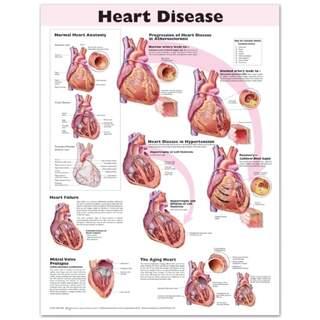 Laminerad affisch på hjärtsjukdom på engelska