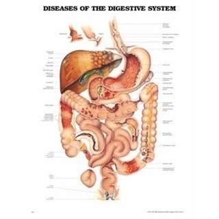 Sjukdomar i magsmältningssystemet laminerad affisch engelsk