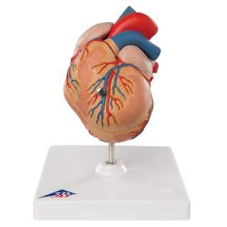 Hjärtmodell med vänsterkammarhypertrofi og belastning