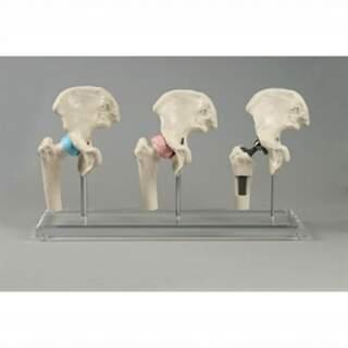 Modell av höftimplantat - tre mini höftmodeller på plexiglas