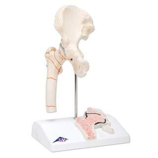 Mini höftled med lårbensfraktur och artrit i höften