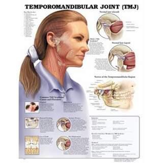 Temporomandibulär ledsjukdom (TMJ) laminerad engelska