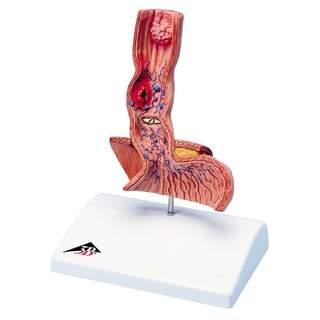 Modell av matstrupen med patologiska tillstånd