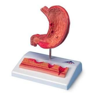 Minimodell av magsäcken med magsår