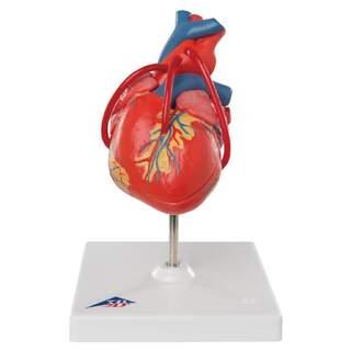 Hjärtmodell som visar resultatet efter en bypass-operation