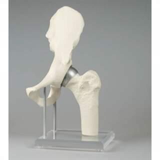 Höftleds modell med implantat - Birmingham Hip