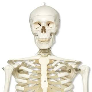 Extra robust skelettmodell
