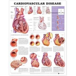 Laminerad affisch på hjärt-kärlsjukdom på engelska