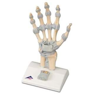 Handskelett med ligament och karpaltunnelsyndrom