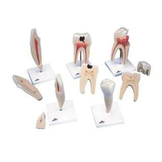 Klassisk tandserie med fem modeller